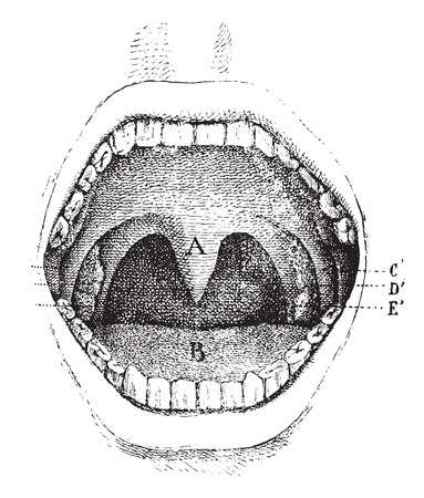 uvula: Mouth (inside of the cavity), vintage engraved illustration. Usual Medicine Dictionary - Paul Labarthe - 1885.