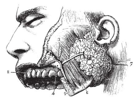 duct: Gl�ndula par�tida y Steno conducto, a�ada una ilustraci�n grabada. Usual Diccionario Medicina - Paul Labarthe - 1885. Vectores