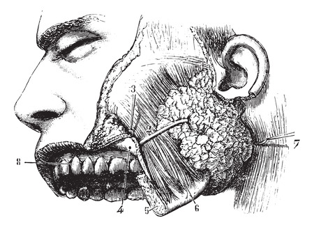 parotid gland: Parotid gland and duct Steno, vintage engraved illustration. Usual Medicine Dictionary - Paul Labarthe - 1885.