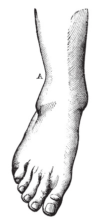 charged: Fibula fracture with A highly charged, and a projection of the foot outside, vintage engraved illustration. Usual Medicine Dictionary - Paul Labarthe - 1885.