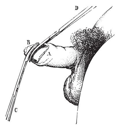 pene: La operaci�n de fimosis por la circuncisi�n, cosecha ilustraci�n grabada. Usual Diccionario Medicina - Paul Labarthe - 1885. Vectores