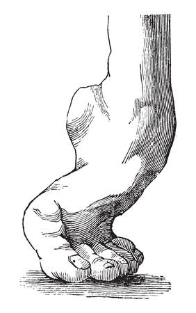 usual: Equine clubfoot, vintage engraved illustration. Usual Medicine Dictionary - Paul Labarthe - 1885. Illustration