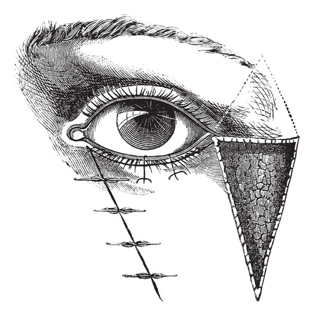 Fig. 180. Blepharoplasty by the method of Dieffembach,  vintage engraved illustration. Usual Medicine Dictionary - Paul Labarthe - 1885.