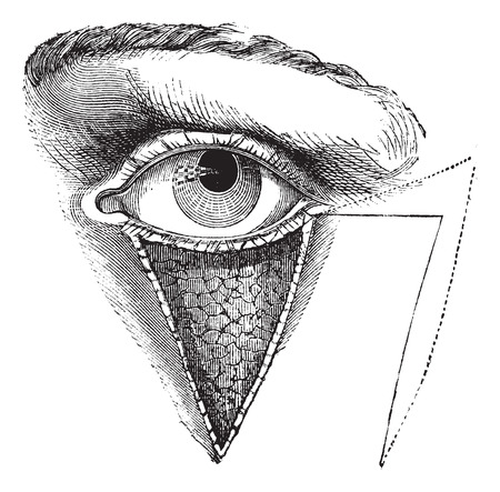 Fig. 179. Blepharoplasty by the method of Dieffembach, vintage engraved illustration. Usual Medicine Dictionary - Paul Labarthe - 1885. Illustration