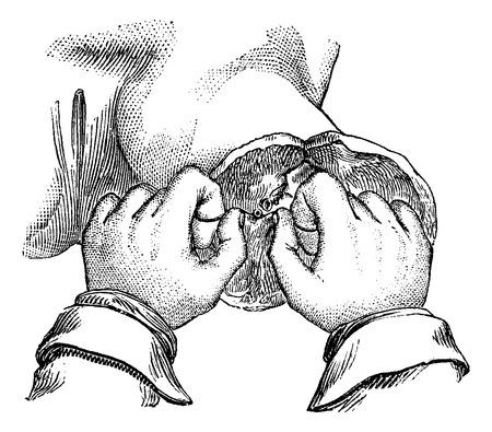 大腿部の切断後、動脈の結紮最初のノード、ヴィンテージの刻まれた図のグリップにあなたの親指を持っている方法です。いつも使っている薬辞典 -  イラスト・ベクター素材