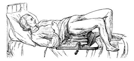 sujeto: Asunto operado en el dispositivo para litotricia, cosecha ilustraci�n grabada. Usual Diccionario Medicina - Paul Labarthe - 1885.