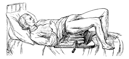 operated: Subject operated on the device for lithotripsy, vintage engraved illustration. Usual Medicine Dictionary - Paul Labarthe - 1885.