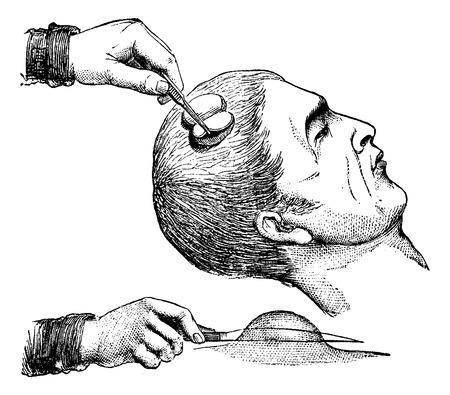 removing: Extirpation of a magnifying glass on the scalp, vintage engraved illustration. Usual Medicine Dictionary - Paul Labarthe - 1885. Illustration