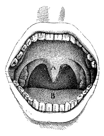 vintage anatomy: Mouth (inside of the cavity), vintage engraved illustration. Usual Medicine Dictionary - Paul Labarthe - 1885.