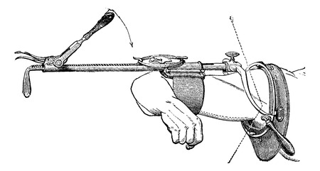 Charriere device to reduce dislocations of the shoulder recent or old, vintage engraved illustration. Usual Medicine Dictionary - Paul Labarthe - 1885. Illustration