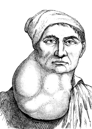 Lymphoma or multiple enlarged lymph nodes in the neck, vintage engraved illustration. Usual Medicine Dictionary - Paul Labarthe - 1885.