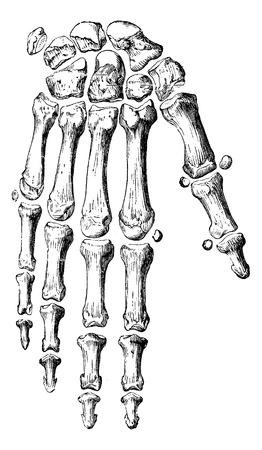 Skelet van de hand en vingers, vintage gegraveerde illustratie. Gebruikelijke Geneeskunde Woordenboek - Paul Labarthe - 1885.