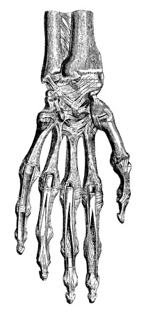 Radiocarpal joint, carpal bones them, carpometacarpal and hand (palm side), vintage engraved illustration. Usual Medicine Dictionary - Paul Labarthe - 1885.