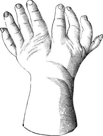 usual: Bifurcated hand, vintage engraved illustration. Usual Medicine Dictionary - Paul Labarthe - 1885.
