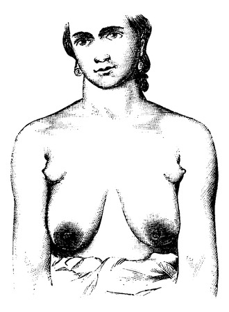 naked female body: Extra teats placed in each axilla of breast, vintage engraved illustration. Usual Medicine Dictionary - Paul Labarthe - 1885. Illustration