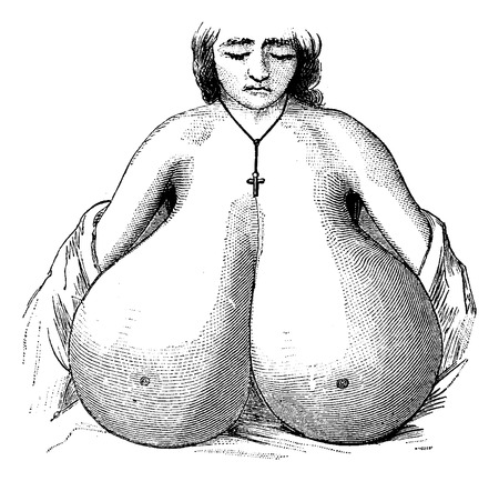 Enlarged breasts, vintage engraved illustration. Usual Medicine Dictionary - Paul Labarthe - 1885. Illustration