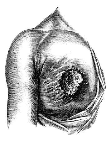 Scirrhous breast ulcer has developed its core and periphery, vintage engraved illustration. Usual Medicine Dictionary - Paul Labarthe - 1885.