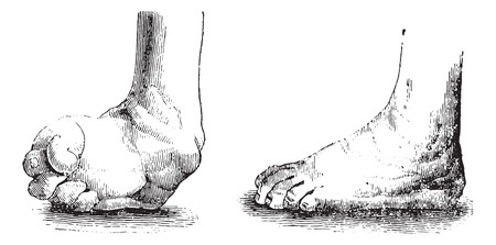 dr: Clubfoot or Club foot or Congenital talipes equinovarus (CTEV) equine before and after the operation, vintage engraved illustration. Usual Medicine Dictionary by Dr Labarthe - 1885.