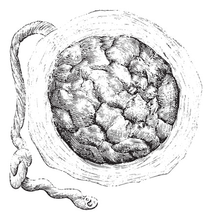 uterine: Placenta (external or uterine side), vintage engraved illustration. Usual Medicine Dictionary by Dr Labarthe - 1885.