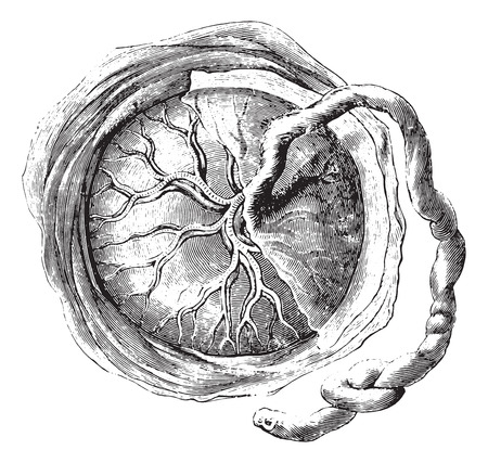 Placenta (internal or fetal face), vintage engraved illustration. Usual Medicine Dictionary by Dr Labarthe - 1885. Ilustração
