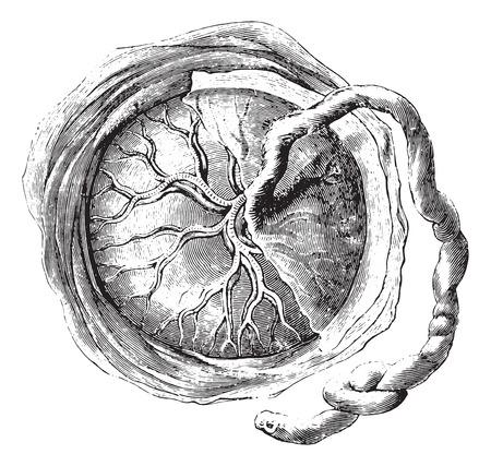 Placenta (internal or fetal face), vintage engraved illustration. Usual Medicine Dictionary by Dr Labarthe - 1885. Illustration