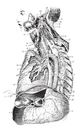 Left Vagus nerve or Pneumogastric nerve or Cranial nerve X, vintage engraved illustration. Usual Medicine Dictionary by Dr Labarthe - 1885.