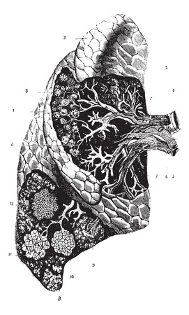 External confirmation, internal organization and structure of the lung, vintage engraved illustration. Usual Medicine Dictionary by Dr Labarthe - 1885.