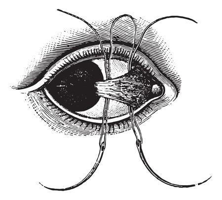 Ligation of pterygium, vintage engraved illustration. Usual Medicine Dictionary by Dr Labarthe - 1885. Illusztráció