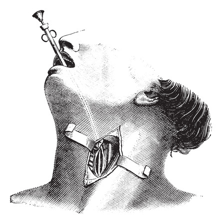 esophagus: External esophagectomy, vintage engraved illustration. Usual Medicine Dictionary - Paul Labarthe - 1885.