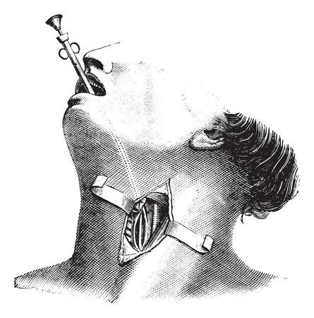 External esophagectomy, vintage engraved illustration. Usual Medicine Dictionary - Paul Labarthe - 1885.