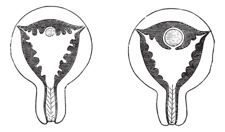 uterine: Fig. 961. Arrival of the egg on the uterine mucosa congested, Fig. 962. The egg is almost surrounded by the uterine mucosa hypertrophied, vintage engraved illustration. Usual Medicine Dictionary - Paul Labarthe - 1885.