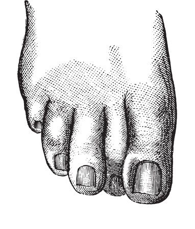 incarnation: Faulty position of the second toe causing the embodiment of the nail of the second toe, vintage engraved illustration. Usual Medicine Dictionary - Paul Labarthe - 1885.