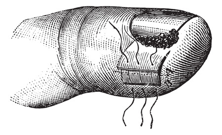 incarnate: Operation of the nail embodies, vintage engraved illustration. Usual Medicine Dictionary - Paul Labarthe - 1885.