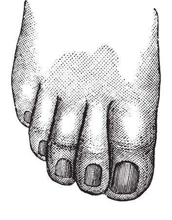big toe: Faulty position of the big and second toe, vintage engraved illustration. Usual Medicine Dictionary - Paul Labarthe - 1885.