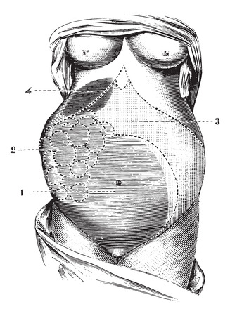 Multilocular ovarian cyst, vintage engraved illustration. Usual Medicine Dictionary - Paul Labarthe - 1885.