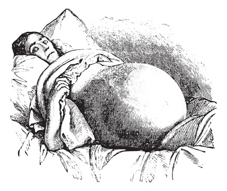 protruding: Ovariotomy, vintage engraved illustration. Usual Medicine Dictionary - Paul Labarthe - 1885.