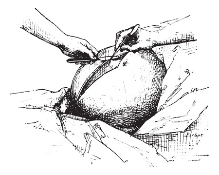 incision: Ovariectomy or Oophorectomy, Incision in the abdominal wall and peritoneum, vintage engraved illustration. Usual Medicine Dictionary - Paul Labarthe - 1885.