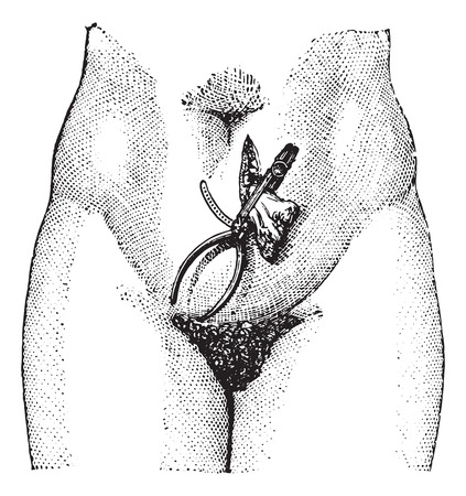 groin: Ovariectomy or Oophorectomy, Application of the clamp, after an operation of oophorectomy, vintage engraved illustration. Usual Medicine Dictionary - Paul Labarthe - 1885. Illustration