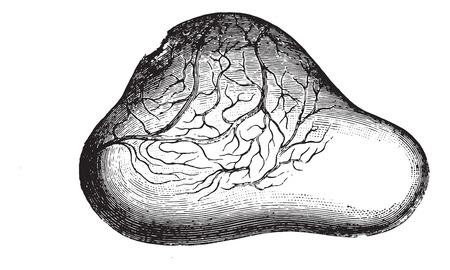 提示非常にサポートされている膀胱の卵巣とビンテージの刻まれた図を壊す寸前にカウントされます。通常の医学辞書 - Paul Labarthe - 1885年。  イラスト・ベクター素材