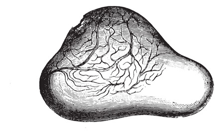 Ovary of the bladder presenting a very supported and will count on the verge of breaking, vintage engraved illustration. Usual Medicine Dictionary - Paul Labarthe - 1885. Illustration