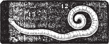 Pinworm or Enterobius or Threadworm or seatworm, vintage engraved illustration. Usual Medicine Dictionary - Paul Labarthe - 1885.