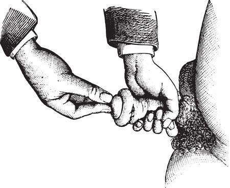 pene: Reducción de la parafimosis por el proceso de Alphonse Guerin, vintage grabado ilustración. Usual Diccionario Medicina - Paul Labarthe - 1885. Vectores
