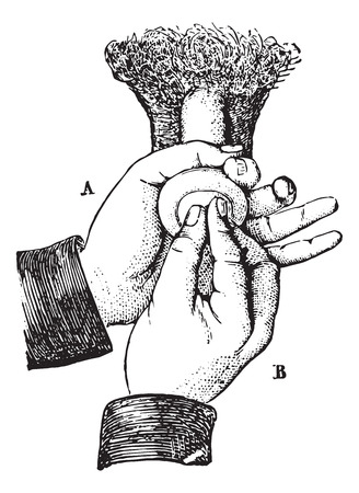 usual: Reduction of paraphimosis the ordinary method, vintage engraved illustration. Usual Medicine Dictionary - Paul Labarthe - 1885.