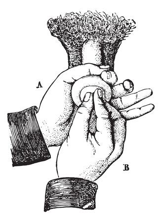 pene: Riduzione parafimosi metodo ordinario, vintage illustrazione inciso. Usual Dictionary Medicina - Paul Labarthe - 1885. Vettoriali