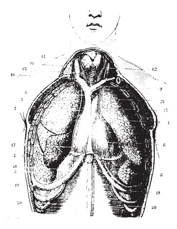 carotid: Cup destiny has chest area show available pericardium, pleura and Lungs, vintage engraved illustration. Usual Medicine Dictionary - Paul Labarthe - 1885. Illustration