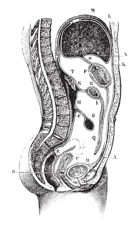 parietal: Vertical and antero-posterior of the abdomen, Path of the peritoneum in the epigastric and hypogastric regions in women, vintage engraved illustration. Usual Medicine Dictionary - Paul Labarthe - 1885. Illustration