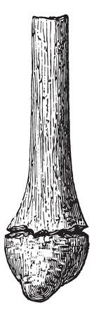 fibula: Fractured fibula when removed, vintage engraved illustration. Usual Medicine Dictionary - Paul Labarthe - 1885. Illustration
