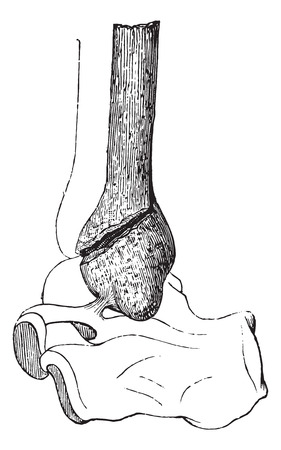 fibula: Fractured fibula by divulsion, vintage engraved illustration. Usual Medicine Dictionary - Paul Labarthe - 1885.