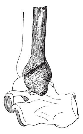 Gebroken kuitbeen door divulsion, vintage gegraveerde illustratie. Gebruikelijke Geneeskunde Woordenboek - Paul Labarthe - 1885.