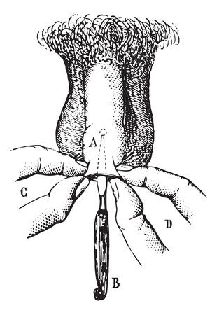 pene: Operación de fimosis por incisión. ilustración, grabado de época. Usual Diccionario Medicina - Paul Labarthe - 1885. Vectores